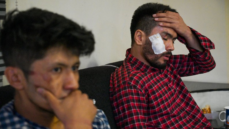 Two Afghan journalists detained, severely beaten by Taliban for covering  women's protests